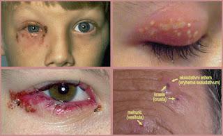 Obat Herpes pada Mata