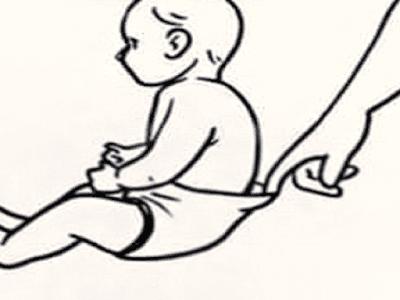Gambar 3 Cara Mengobati Mencret Atau Diare Pada Bayi Dan Anak