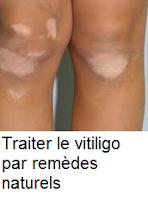 remèdes naturels qui peuvent éliminer le vitiligo