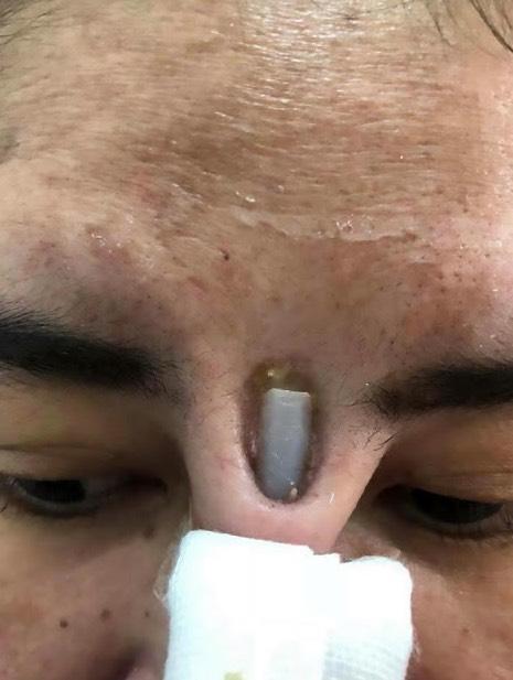 Nak hidung mancung punya pasal