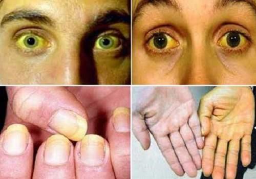 Penyebab, Gejala, dan Cara Mengobati Penyakit Hepatitis