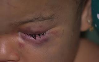 Mãe confessa que traumatismo craniano de bebê foi consequência de sua agressão à criança