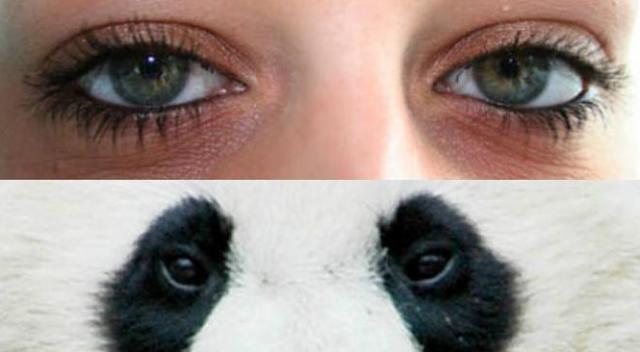 Penyebab Munculnya Mata Panda dan Cara Menghilangkannya