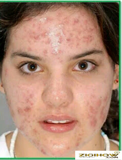 WAYS ON HOW TO CLEAR PIMPLES EFFECTIVELY 1