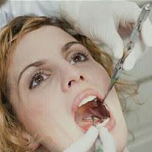 Mitos Mencabut Gigi Saat Sedang Hamil