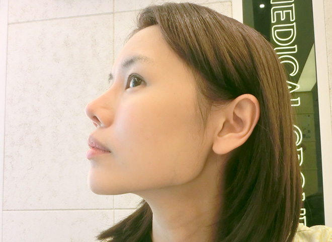 how to get a more defined chin