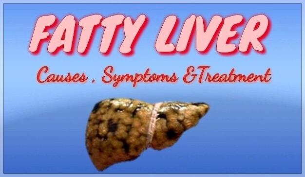 Fatty Liver Disease Causes, Symptoms,Treatment