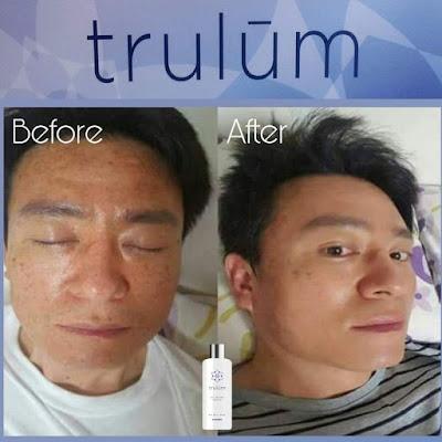 Jual Obat Penghilang Flek Hitam Trulum Skincare Tungkal Jaya Musi Banyuasin