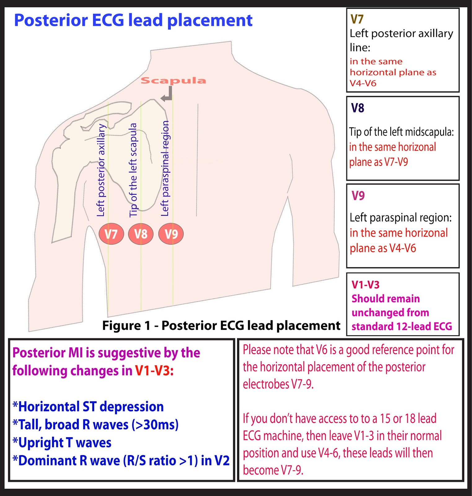 Beste Relationship Of 12 Lead Ecg To Coronary Artery Anatomy ...