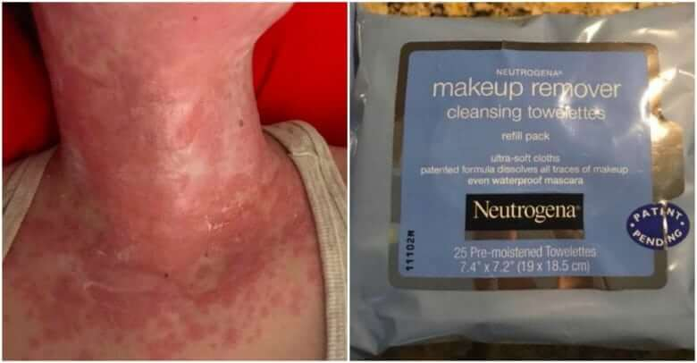 Enraged Mom Shares Evidence Of How Makeup Wipes Damaged Her Daughter's Skin