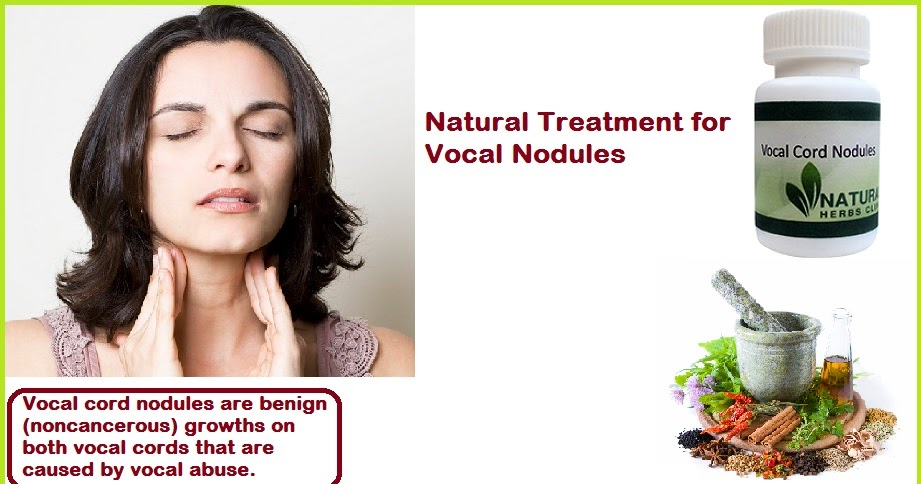 vocal nodules treatment natural. Black Bedroom Furniture Sets. Home Design Ideas