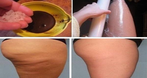 impachetarile cu cafea, miere si ulei de masline trateaza eficient celulita