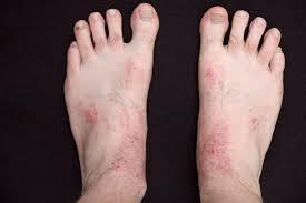 cara mengobati eksim basah di kaki