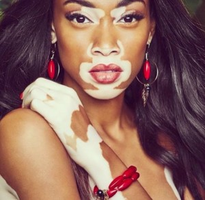 Winnie-Harlow-Model with vitiligo