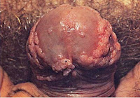 genital warts keep spreading pictures