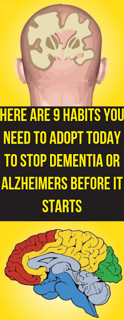 Here Are 9 Habits You Need To Adopt Today To Stop Dementia or Alzheimers Before It Starts