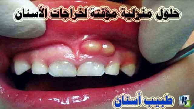 خراج الأسنان ونصائح منزلية لحين الذهاب لطبيب الأسنان
