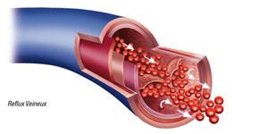 Insuffisance veineuse : jambes lourdes, gonflées, œdème