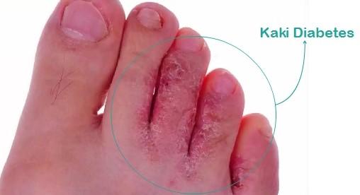 Gambar luka diabetes di kaki