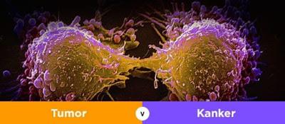 Ingin Tahu Perbedaan Tumor Dan Kanker? Inilah Penjelasannya!