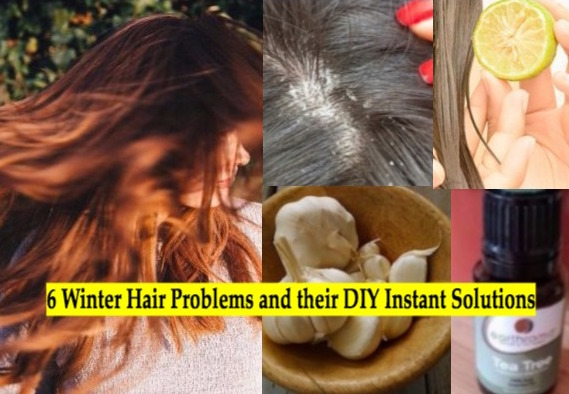 6 Winter Hair Problems and their Quick Homemade Solutions