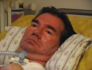 Piergiorgio Welby was kept alive by an artificial breathing mechanism for the last nine years of his life