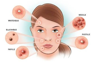 Acne - Symptoms, Cure
