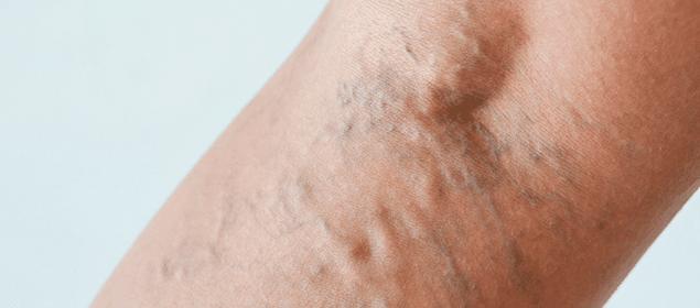 cómo prevenir y tratar las varices