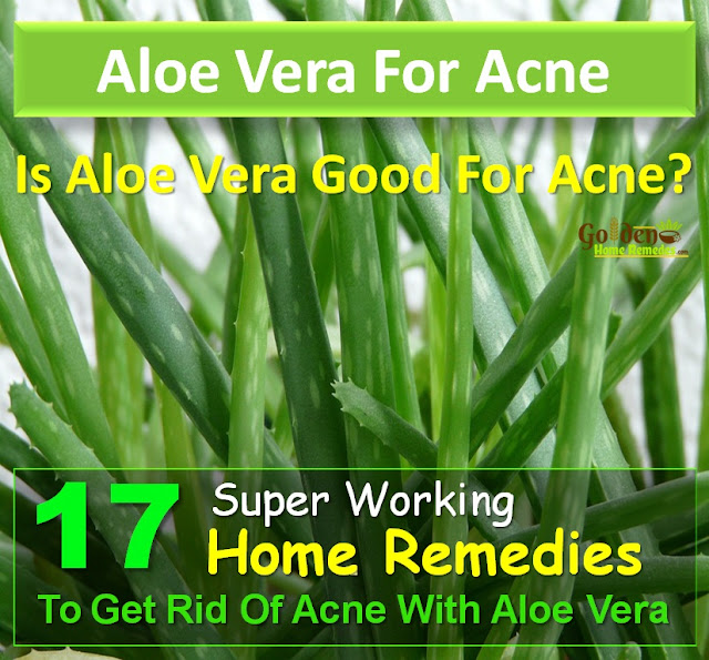 Aloe Vera For Acne, Aloe Vera Acne, Aloe Vera For Pimples, Is Aloe Vera Good For Acne, Aloe Vera And Acne, How To Use Aloe Vera For Acne, Aloe Vera For Acne Treatment, Acne Treatment With Aloe Vera, How To Get Rid Of Acne With Aloe Vera,