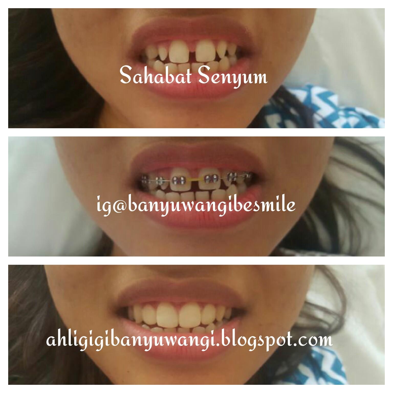 Merapatkan Gigi Dengan Behel Kawat Gigi Ahli Gigi Banyuwangi