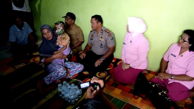 Kapolres Asahan Kobul Syahrin Ritonga saat memberikan bantuan kepada Faridah Hasanah bocah penderita tumor mata.
