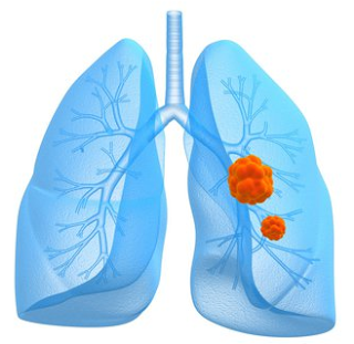End Stages Lung Cancer