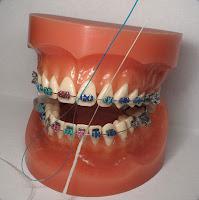 Comment soigner vos dents avec des bretelles