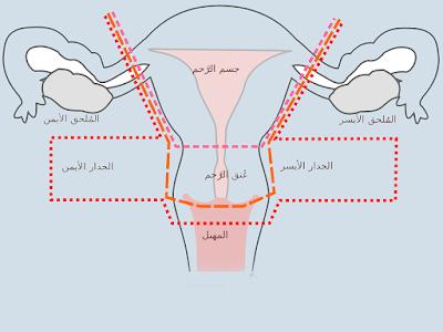 علاج نزول الرحم جابر القحطاني