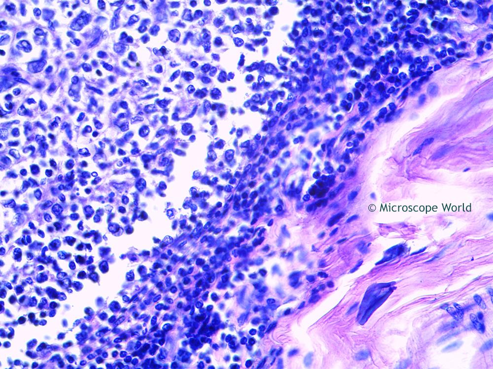 Microscope World Blog: Tonsils under the Microscope