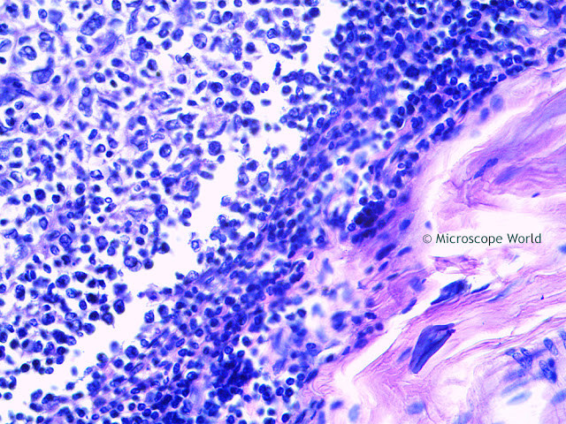 Microscope World image of palatine tonsil cs captured at 400x.