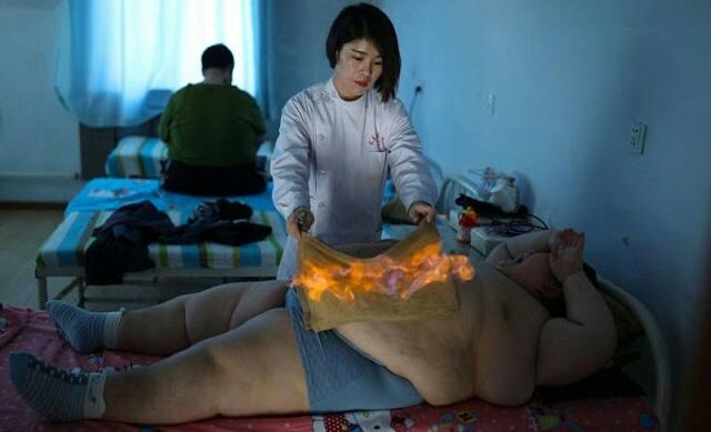 मोटापे को कम करने के लिए यहां शरीर पर ही लगा दी जाती है आग... - newsonfloor.com