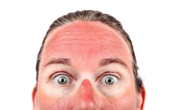 Sunburn Teruk Mesti Jumpa Doktor ?