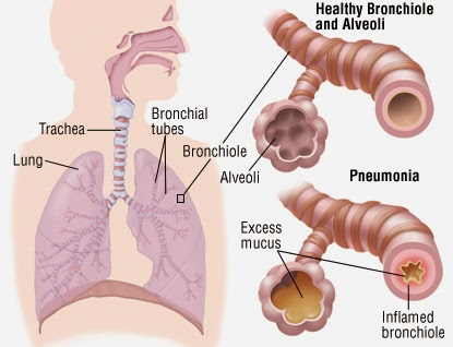 obat radang paru untuk ibu hamil