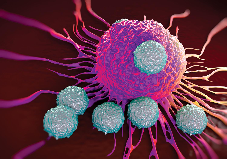 biopsia prostata 2 13 cores