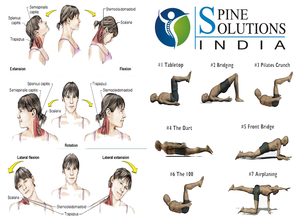 Spine Solutions India by Dr Sudeep Jain: Exercises for ...