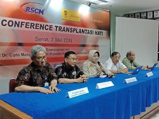 Perkembangan Transplantasi Hati di RSCM