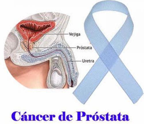 ultrasonido transrectal para próstata en Campania 2020