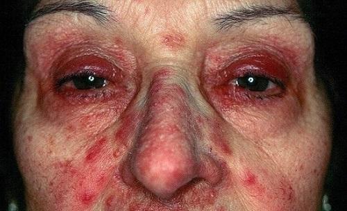 Como Tratar la Rosacea Ocular