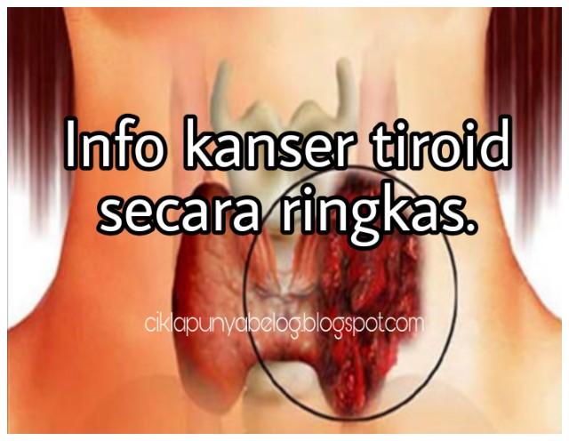 Info kanser tiroid secara ringkas.