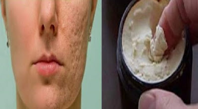 Apply This #Mask On Your Face For 5 Minutes – Your #Scars and #Stains #Will #Disappear in No Time [#Beauty Tips, #Health]