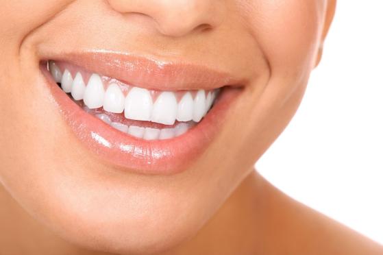 13 Cara Mudah Memutihkan Gigi Secara Cepat Dan Alami Serba Sehat