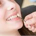 Veneer Gigi Menurut Hukum Islam