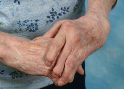 Remedios Naturales Para La Artritis Psoriasica