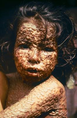 Top 10 most dangerous disease,dangerous diseases,kill diseases,most dangerous diseases